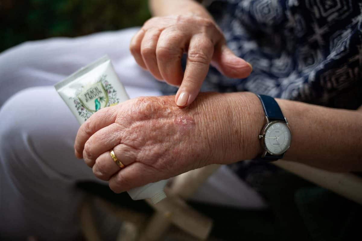 אשה מבוגרת הסובלת מדלקת פרקים